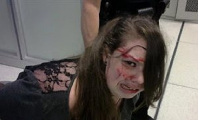 Ασφάλεια αεροδρομίου ξυλοκοπεί και συλλαμβάνει 18χρονη, ανάπηρη καρκινοπαθή. Σοκάρουν οι φωτογραφίες και το βίντεο
