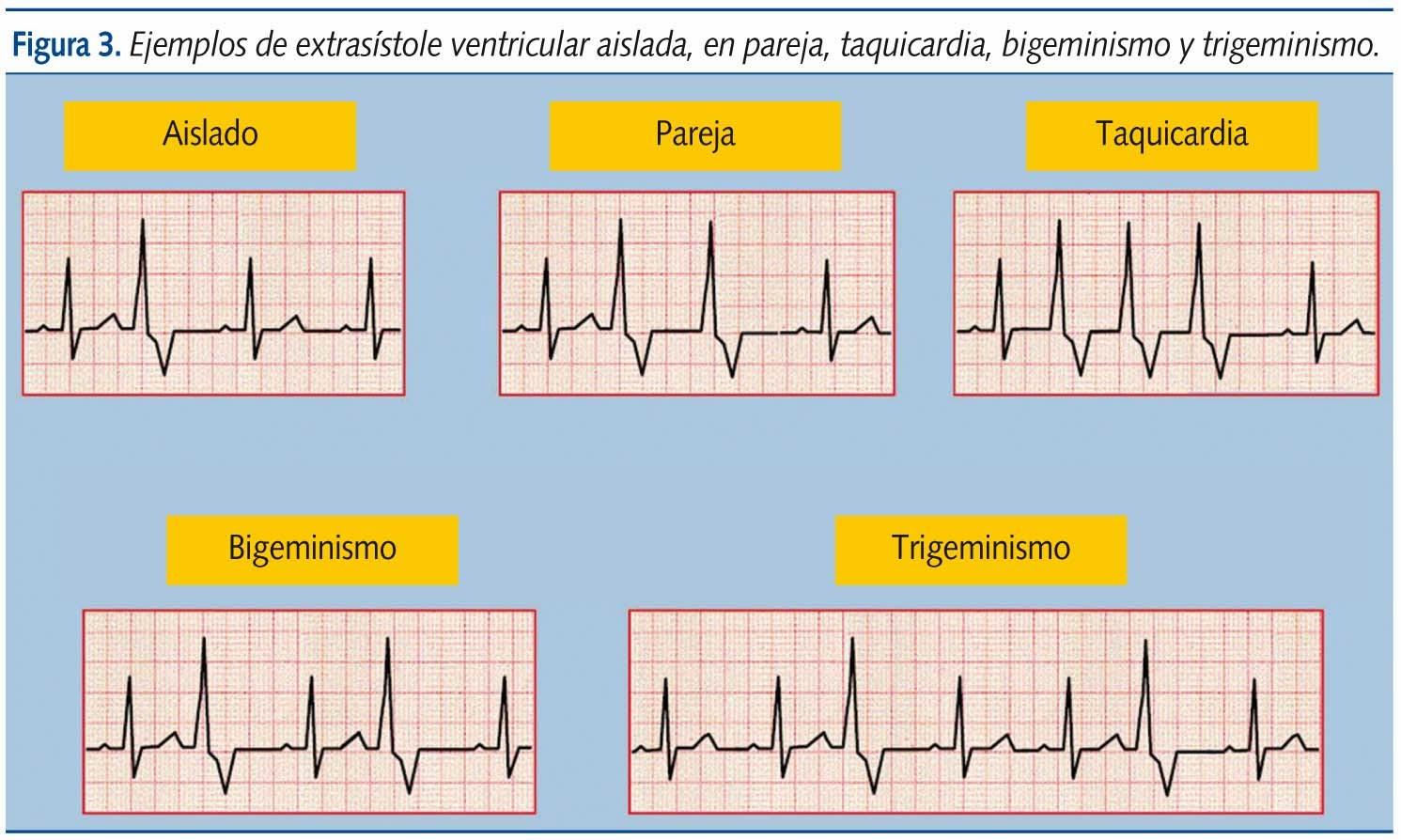 Aprendiendo a cuidar el corazón : Arritmias Cardiacas