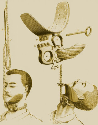 The 'chin trough' was designed to ensure a quicker death by hanging (British Medical Journal, 6 October 1888)