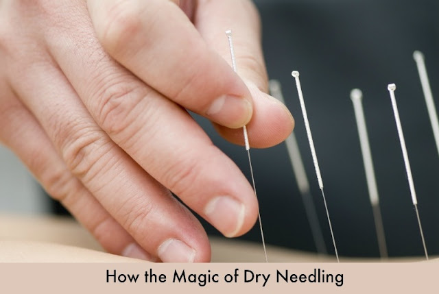 How the Magic of Dry Needling