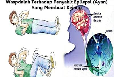 Dampak Epilepsi bagi Tubuh Manusia