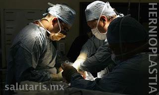 Reparación de Hernia Hiatal y de reflujo con cirugía laparoscopica en Salutaris Guadalajara