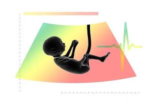 Bayi dalam kandungan