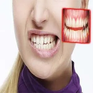 اسباب طحن الاسنان ومضاعفاته