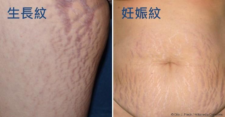 妊娠紋、肥胖紋除得掉嗎?能夠預防嗎?照護線上