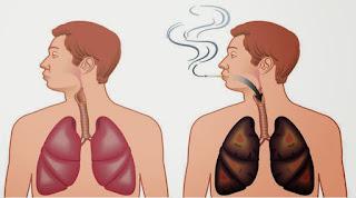 Cara Membersihkan Paru-Paru kotor Akibat Rokok