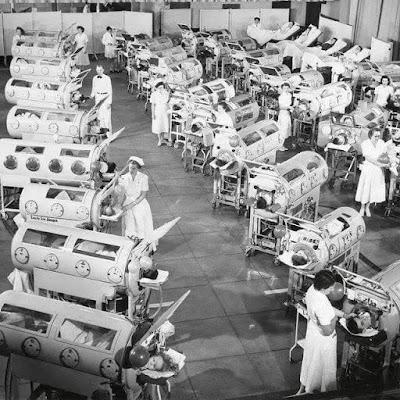 Kesan Mengerikan Penyakit Polio Jika Tidak Divaksin