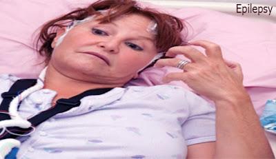 Epilepsy,মৃগী রোগ