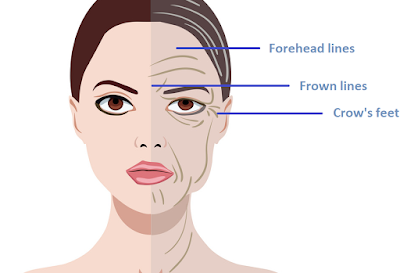 FAQS: Anti Wrinkle Injections