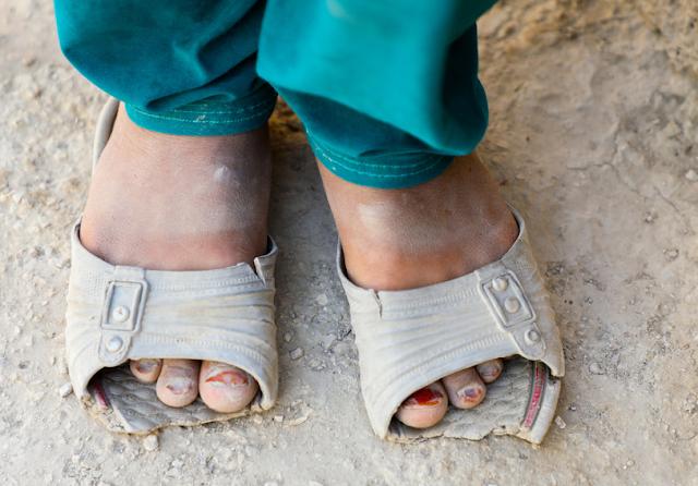 جريدة أكادير بريس : كوفيد -19: الوباء يهدد بدفع 130 مليون شخص إضافي إلى الفقر المدقع (الأونكتاد)