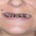 Esta Mujer Lleva Más 15 Años Si  Lavarse Los Dientes ¡Mira Lo Que Encontró El Dentista!