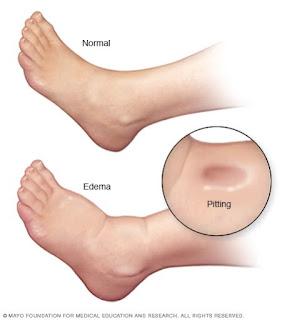 Perbandingan kaki normal dan beri-beri (edema)