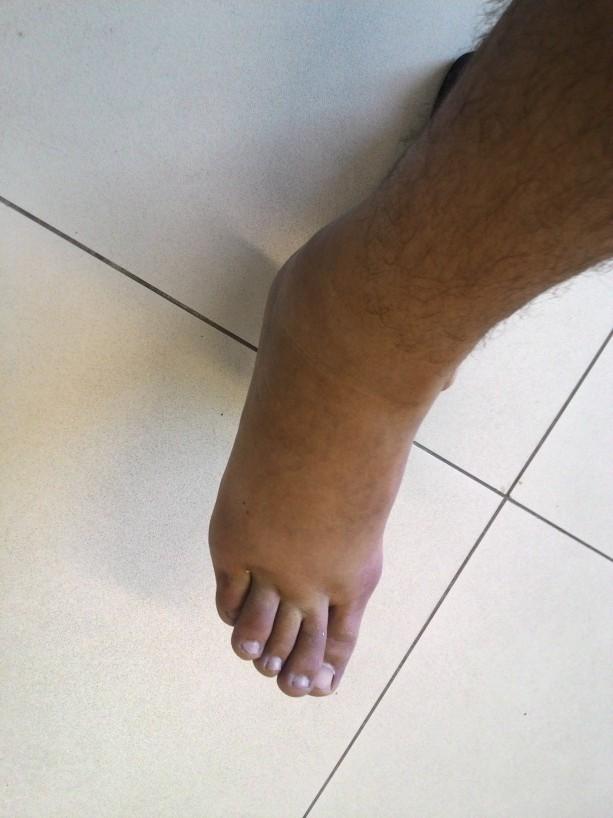 inchaço no tornozelo não vai desaparecer por conta própria