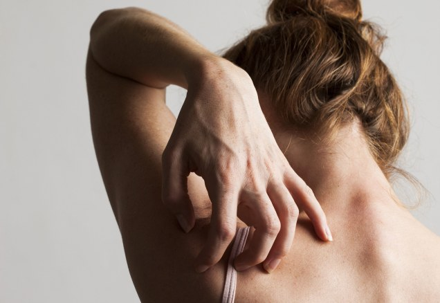Rash Decisions: How to Deal With Itchy, Red Skin