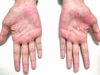 Ketahui cara perawatan umtuk penyakit selulitis