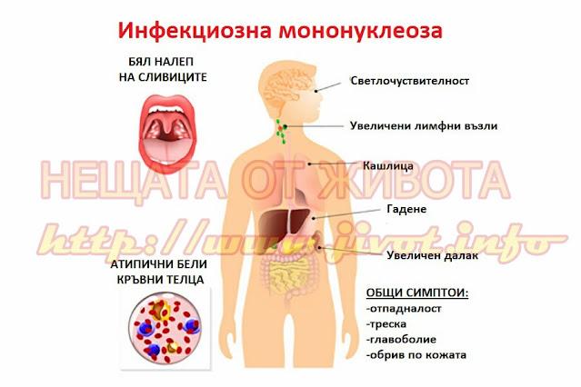 Инфекциозна мононуклеоза при децата
