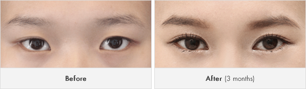 짱이뻐! - Korean Eye Plastic Surgery - Eyelid Revision