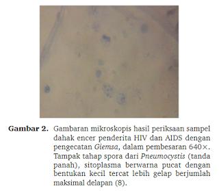 Gambaran Mikroskopis dahak encer penderita hiv aids.png