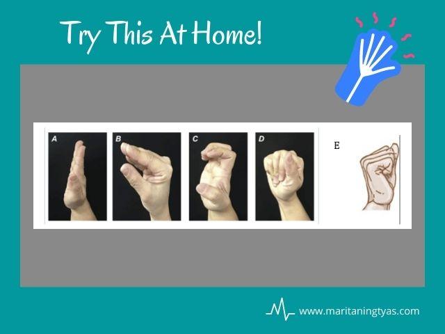 terapi trigger finger