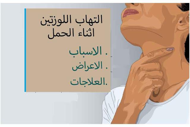 التهاب الحلق أثناء الحمل - الأسباب والأعراض والعلاج