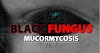 Black fungus: How infection starts, death rate, treatment, medicine & other key things to know