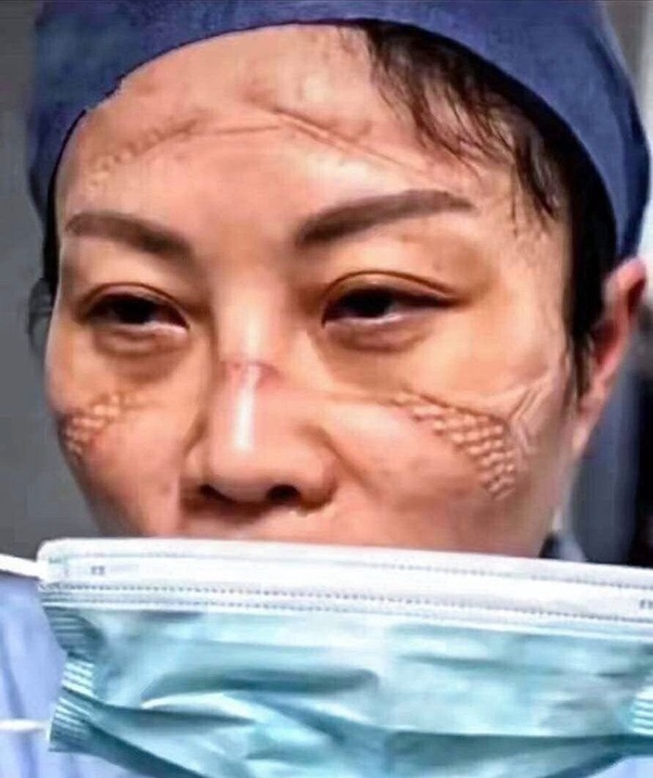 Chinese nurses taking off their face masks after a grueling shift