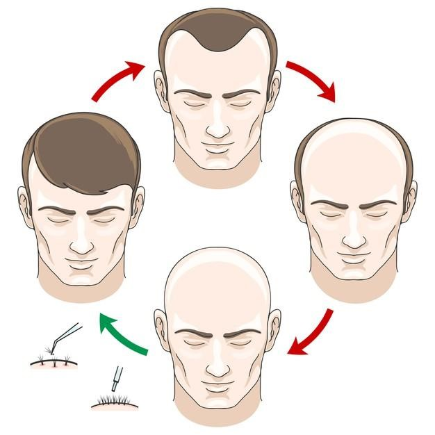 How to Stop Hair Fall and Grow Hair Faster Naturally?