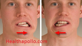Jaw movement excercise for double chin