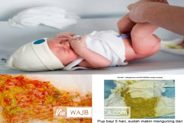 Cara Cek Kesehatan Bayi dengan Mendeteksi Lewat Pola dan Warna BAB atau Fases