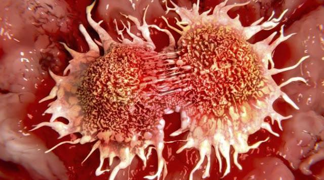 Manfaat Hebat Puasa Bagi Penderita Kanker