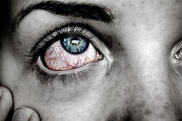 Mengenal Penyebab Mata Merah Dan Cara Mengatasinya