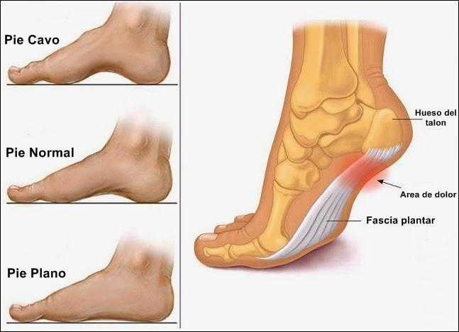 niveles normales de acido urico en embarazadas como combatir el acido urico alto remedios naturales para la gota en el pie