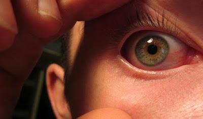 Çağın Hastalığı Göz Tansiyonun 5 Nedeni ve Tedavi Yöntemleri
