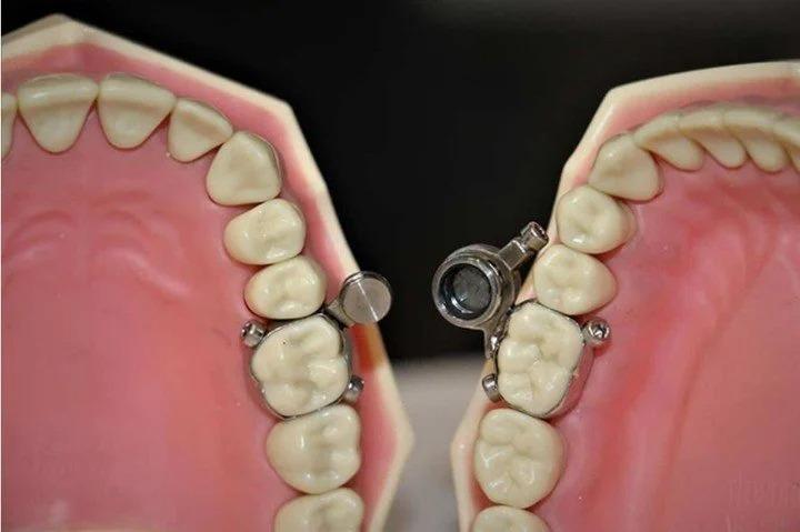 Nuevo invento que cierra mandíbula para bajar de peso