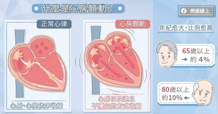 什麼是心房顫動