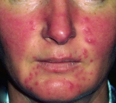 The disorder is characterized by an erythematous rash  Treatment For Rosacea - What Is Rosacea ?