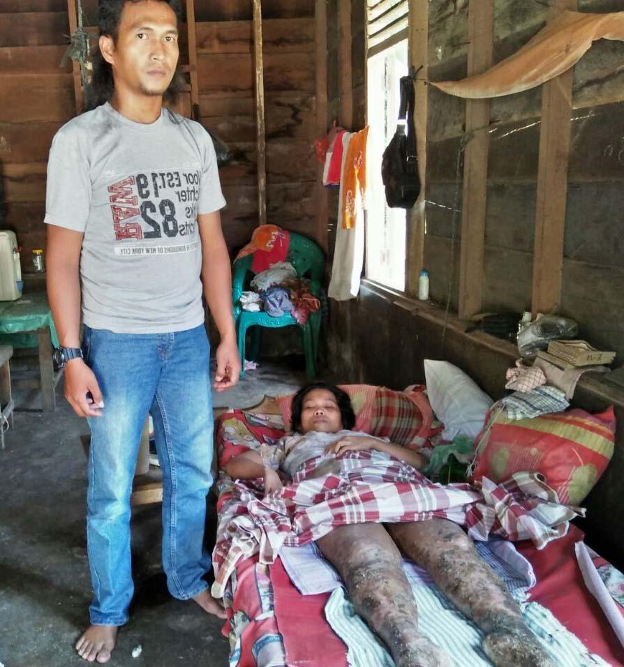 Elferida Manalu warga Tapteng yang menderita kaki lumpuh.