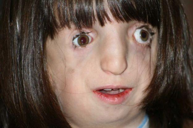 Синдром Тричера Коллинза: как живут «люди без лица»