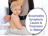 Bronchiolitis Treatment in Babies