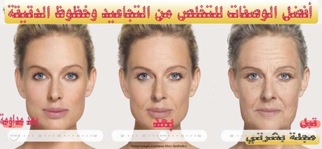علاج تجاعيد الوجه طبيعيا وطبيا