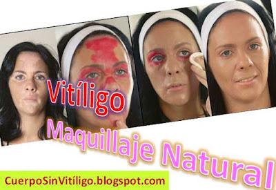 maquillaje-para-cubrir-el-vitiligo-manchas-blancas-piel-cara