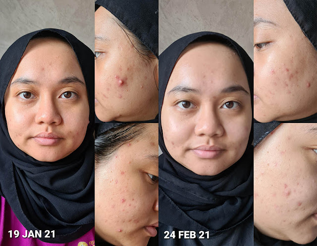 Before & After Using Essano Kale Night Creme