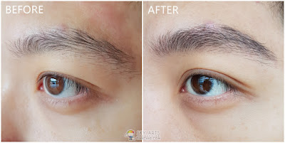 Immediate result after my first Korean Eyebrow Embroidery with Ivy Brow Design (left eye)