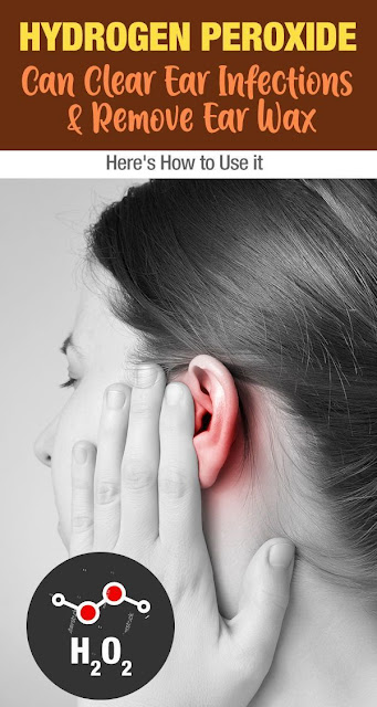 Hydrogen Peroxide Can Remove Ear Wax And Clear Ear Infections: How To Use It