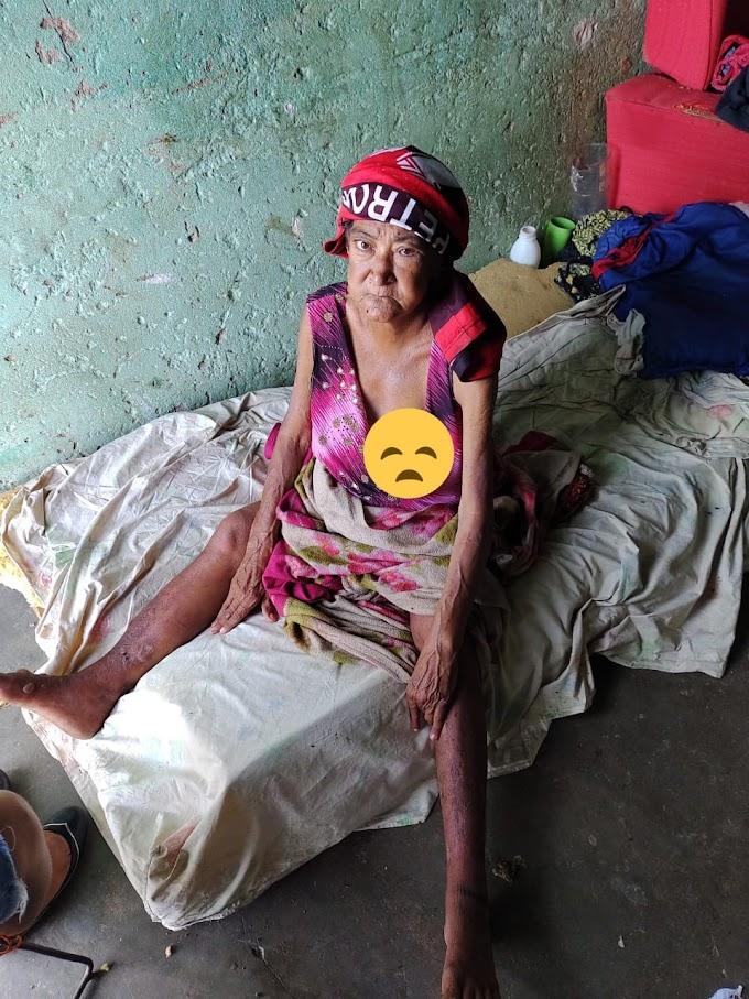 Vivendo num total abandono Cilene, da cidade de Cajazeiras passa por sérios problemas de saúde