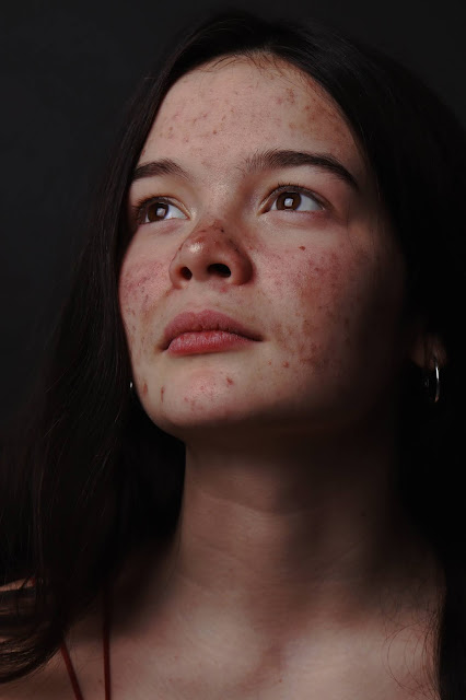 Girl with acne:Photo by Megan Bagshaw on Unsplash