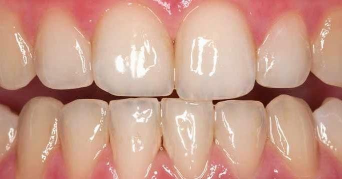 3 astuces naturelles pour blanchir les dents la maison soins dentaires. Black Bedroom Furniture Sets. Home Design Ideas