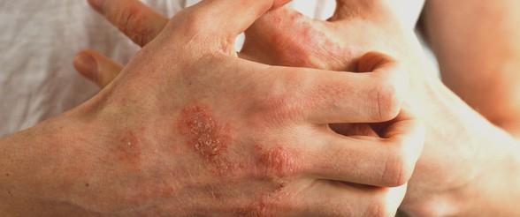 ماهي الاكزيما وماهو علاجهاwhat is eczema and its tretment