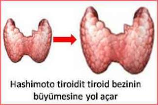 Hashimoto tiroidit belirtileri
