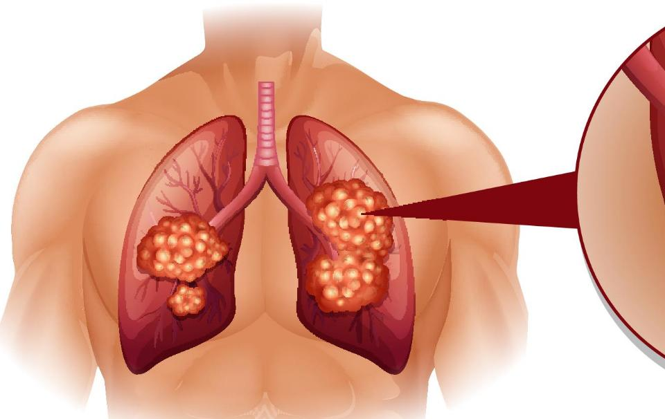 Treatment For Lung Cancer Stage 4